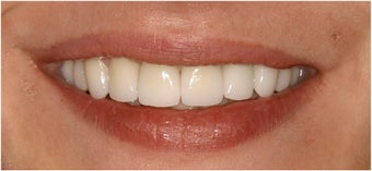 8 Veneers to a more confident smile