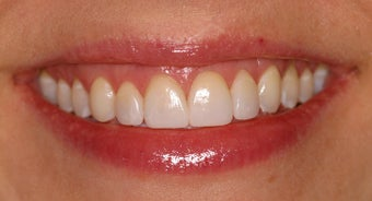 Deep bleaching with porcelain veneers