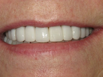 Veneers and Whitening