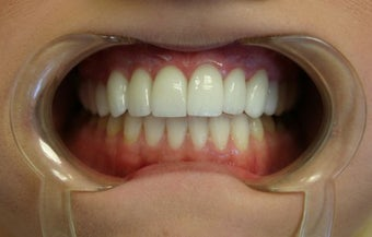 Upper arch make over with veneers and crowns