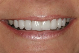 Smile Makeover with Minimal-Prep Porcelain Veneers