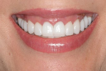 Smile Makeover: Porcelain Veneers