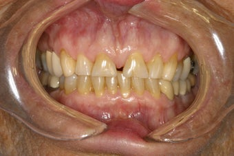 Diastema (Gap) Closure