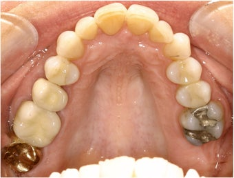 Natural All Porcelain Restorations