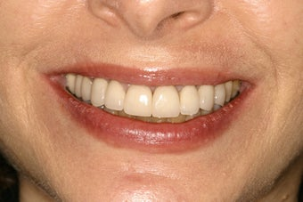Tetracycline Stains treated with Veneers