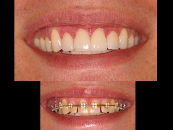 Whitening and porcelain veneers