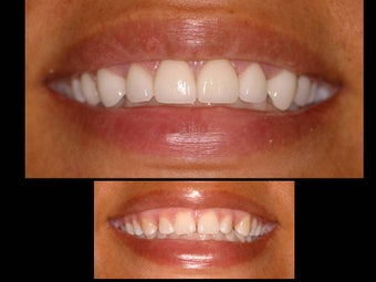 Porcelain veneers to close gaps