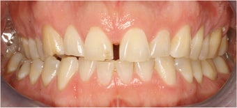 Closing Gap With Porcelain Veneers