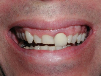 Porcelain Veneers, Crowns, Teeth Whitening, and Gummy Smile Repair