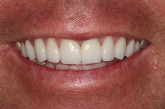 Porcelain Veneers/ Smile Makeover