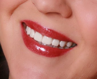 Temporary Veneers