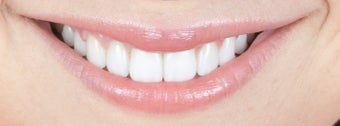 Gum re-contouring and porcelain veneers