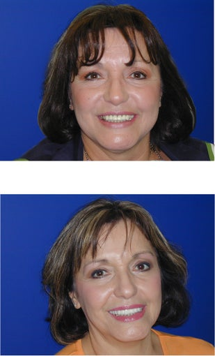 Cosmetic Dentistry- Upper Veneers and Teeth Whitening