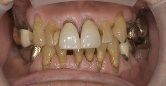 parcelain crowns and veneers