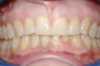Porcelain Veneers four front teeth