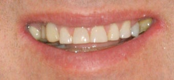 Porcelain crowns and porcelain veneers