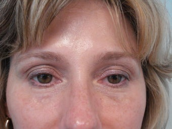 """No-Lift"" Eye Lift with Portrait PSR and Filler Injection"