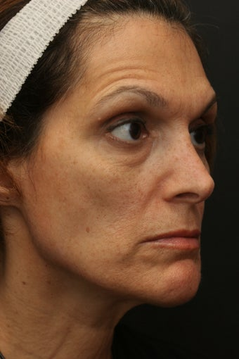 Portrat PSR3 Plasma Skin Resurfacing
