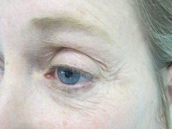 Portrait Plasma Resurfacing