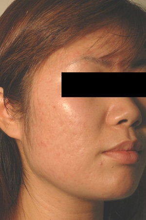 Pulsed Dye Laser Treatment for Red Acne Scars