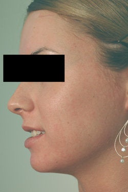 Pulsed Dye Laser Treatment for Acne/Rosacea