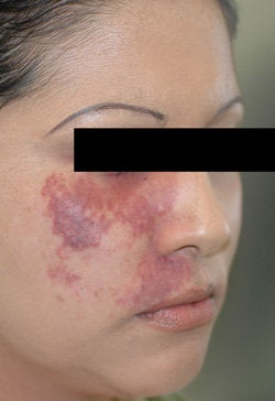 Port Wine Birthmark Removal with Pulsed Dye Lasers