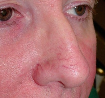 PDL for nose veins