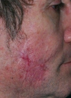PDL scar treatment