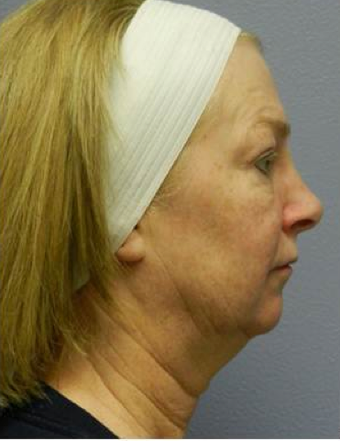 Quicklift (Lower Face/Neck Lift with Chin Aug)