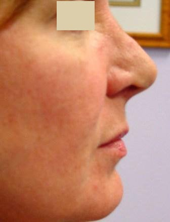 Radiesse Cheek Lift
