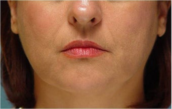 Radiesse injection nasolabial folds and marionette lines
