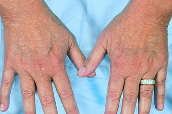 Radiesse for Hand Rejuvenation