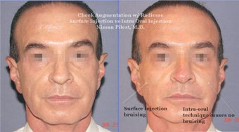 Cheek Augmentation with Radiesse