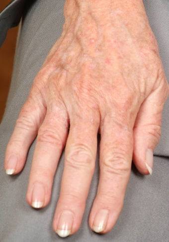 Radiesse treatment for hand rejuvenation
