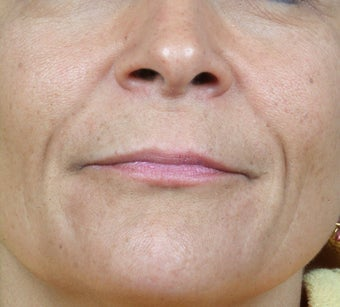 Radiesse treatment for nasolabial folds