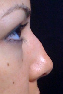 Lunch Time Nose Job using Radiesse