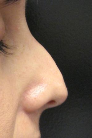 Nasal Tip created using Radiesse