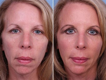 Radiesse, Cheek and Chin Augmentation