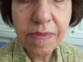 Radiesse to the face/ nasolabial folds