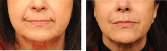 Radiesse to Nasolabial Folds