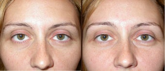 filler to under eye-cheek