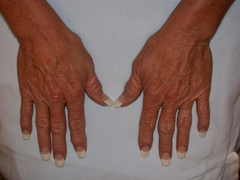 Before & After Hand Rejuvenation