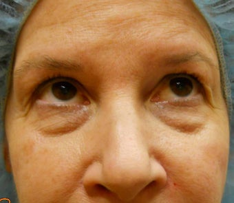 Under-Eye Filler Treatment
