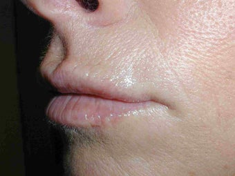 Restylane in Upper Lip