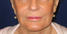 Restylane injection into lips and nasolabial folds