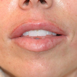 Uneven Lips Before and After Restylane