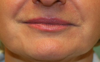 Restylane around the mouth