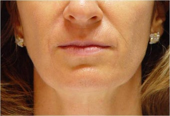 Restylane in Nasolabial folds and Marionette lines