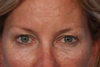 Restylane to Tear Trough (under eyes)