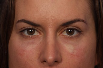 Restylane to Tear Troughs (under eyes)